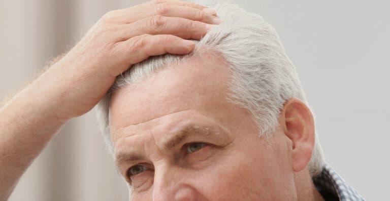 calvice-envelhecimento