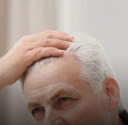 calvice-envelhecimento-home
