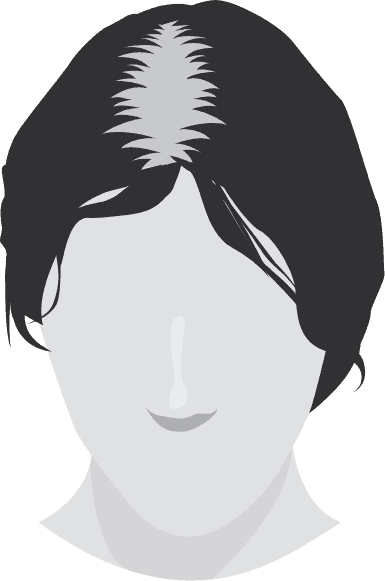 head-1